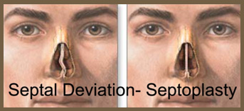 Damage of the nasal septum during a primary rhinoplasty either by it    Nasal Septum Deviation Surgery